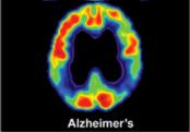 brain-scan-alzheimers-F